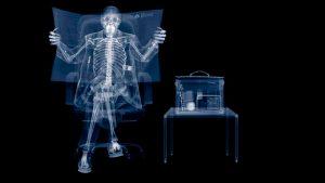 Avant Servicios - Seis descubrimientos de la humanidad debidos a la casualidad - Los Rayos X